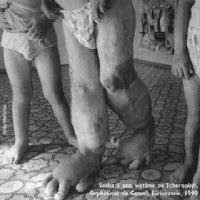 handicape-gomel-1999s LIQUIDATEURS